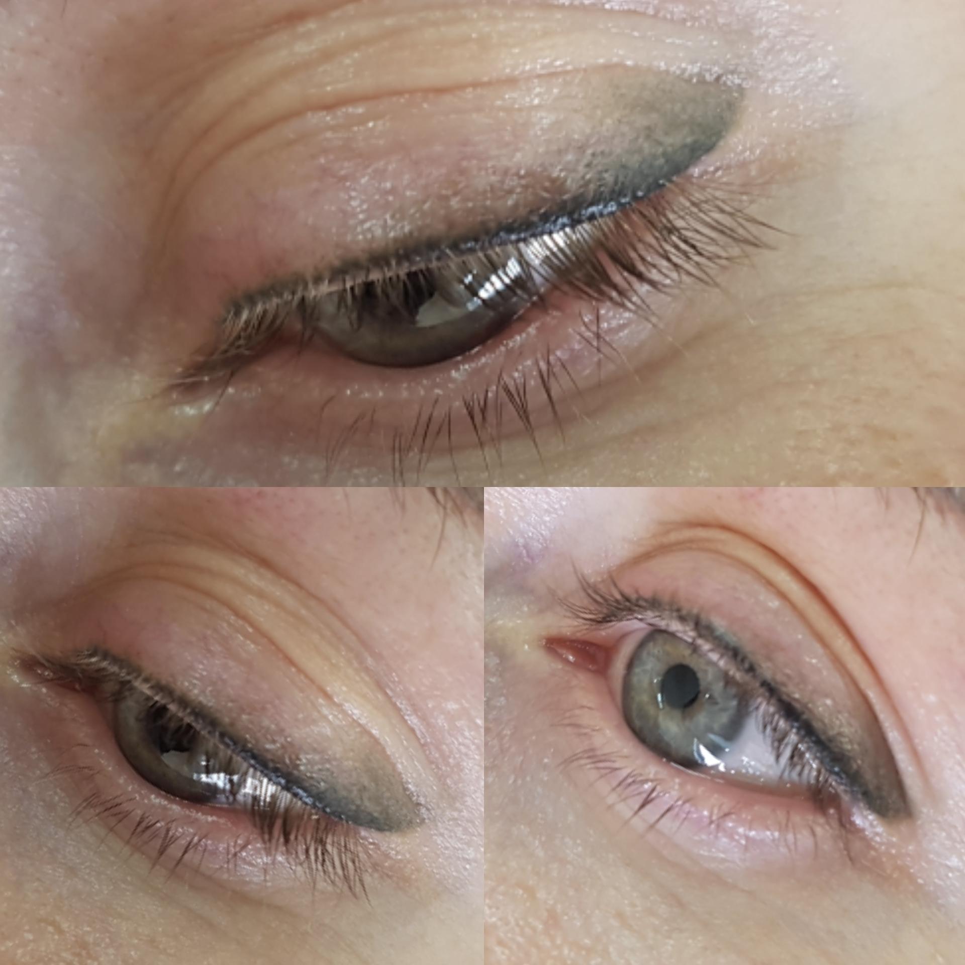 Удалить лазером перманентный макияж век